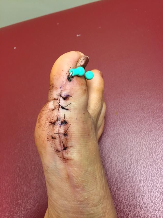 2015-8 Claire's Broken Toe 2